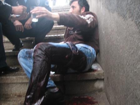 Erzurum iki kişi bıçaklandı 7