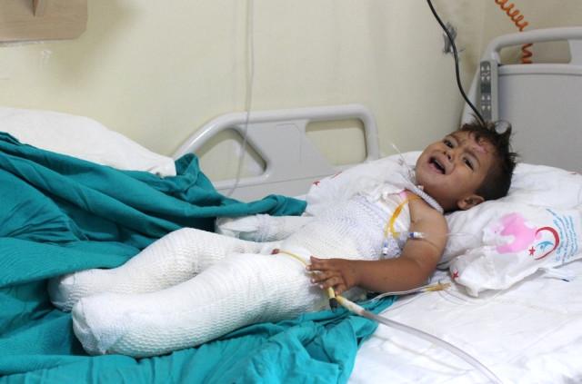 Tandıra Düşen 2 Yaşındaki Çocuk Feci Şekilde Yandı