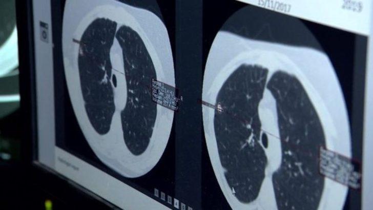kalp hastalıkları ve akciğer kanseri yapay zeka ile teşhis edilecek