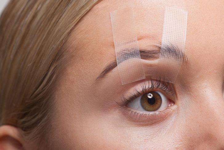 Göz estetiği ameliyatları nedir, nasıl yapılır ve neden gereklidir?