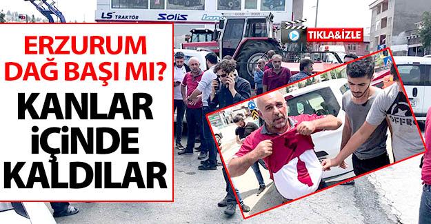 Erzurum'da Baba-oğul silahlı kişilerce darp edildi!
