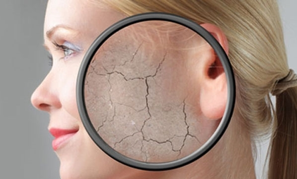 İşte cildinizi soğuk havadan korumanın yolları!