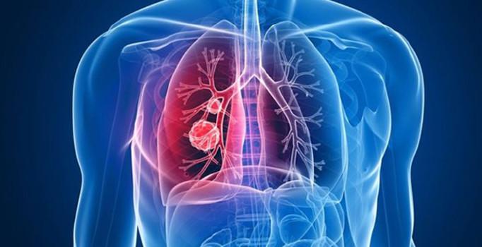'Her yıl 50 bin kişi akciğer kanseri oluyor'
