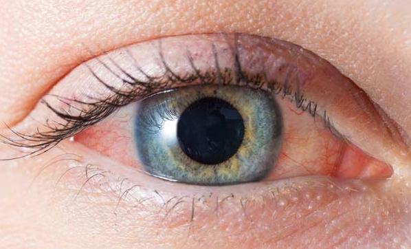 Göz tansiyonu görme kaybına yol açabilir!