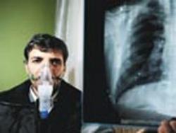 78 slikozis hastasına aylık