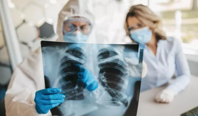 Koronavirüsün akciğer hasarı 3 aydan uzun sürüyor!