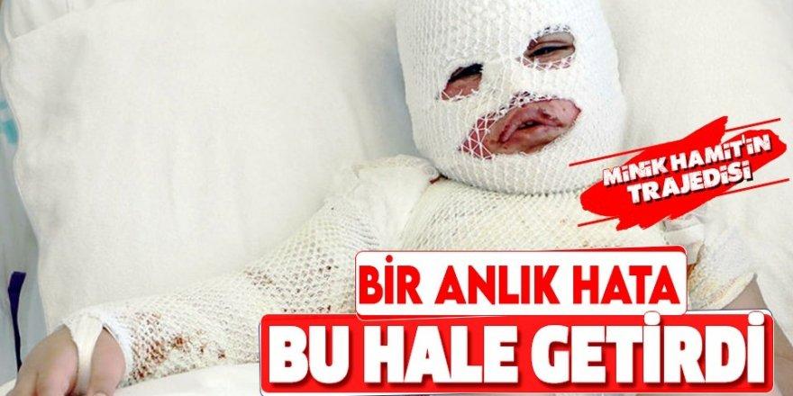 Başından aşağı kaynar su dökülen çocuk Erzurum'da tedaviye alındı
