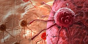 400 milyon lira yatırımla kansere çare olacak