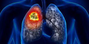 Pasif içiciler de kansere yakalanıyor!