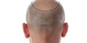 Saç ekimi nasıl doğal görünür?