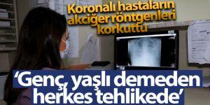 Koronalı hastaların akciğer röntgenleri korkuttu